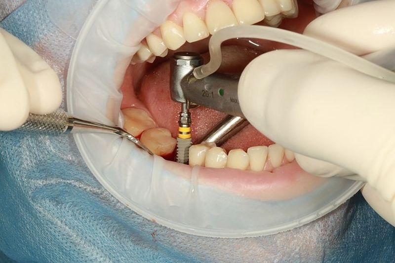 Zobni implantat bo za vedno postal vaš zob
